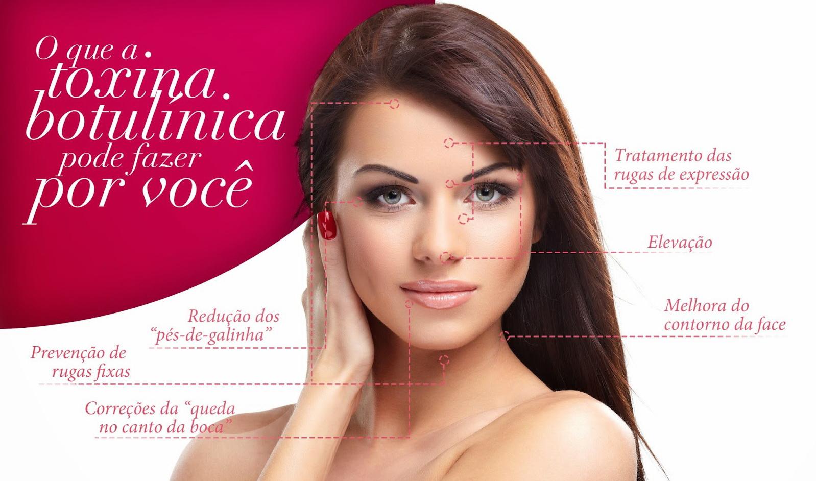 Toxina Botulinica -botox aplicacao de botox