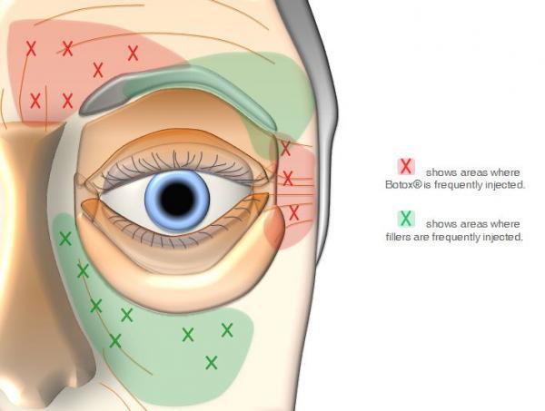 areas de aplicacao de botox e de preenchimento