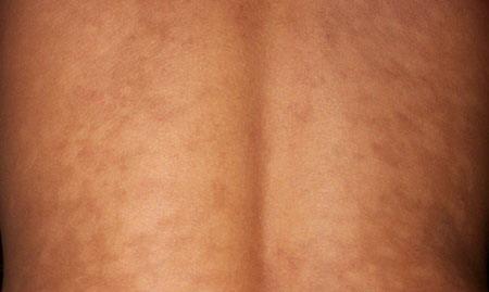 hipomelanose_tronco dermatologistas