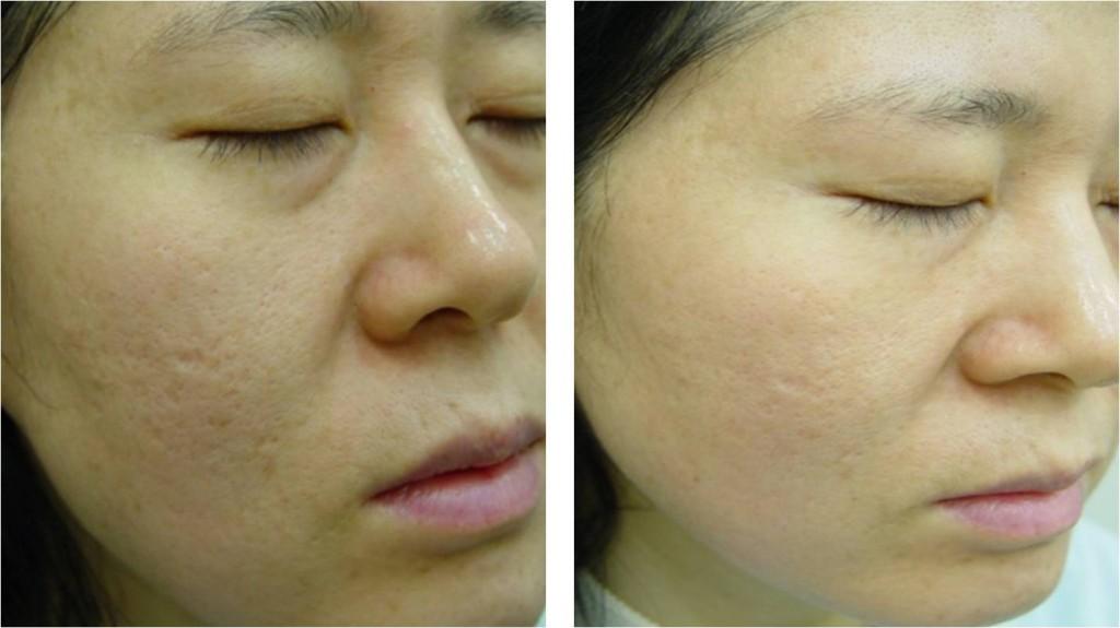 Cmo quitar y reducir las cicatrices de la cara?, Facial