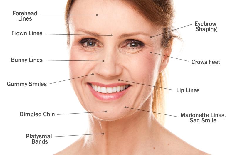 pontos de aplicacao de botox e aplicar botox estetica