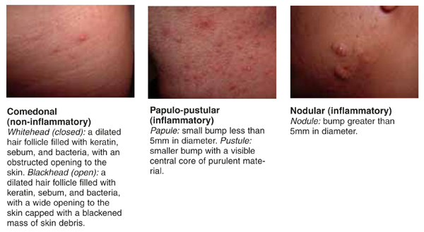 tipos-de-acne