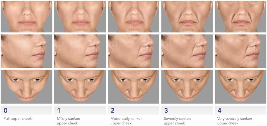 Escala de envelhecimento para preenchimento com restylane ou juvederm ou acido hialuronico