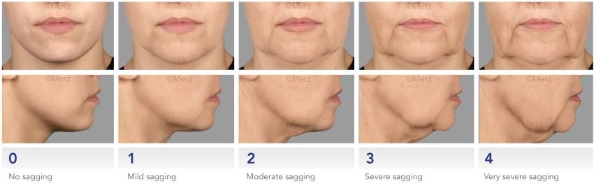 Escala de envelhecimento para preenchimento marionete com restylane ou juvederm ou acido hialuronico