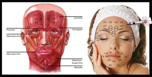 pontos de aplicacao de botox e aplicacao de toxina