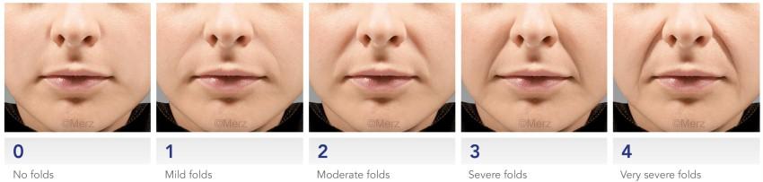 preenchimento bigode chines com acido hialuronico restylane perlane juvederm face sao paulo osasco dermatologista