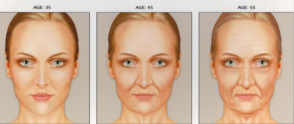 preenchimento-com-acido-hialuronico-restylane-perlane-juvederm-face-sao-paulo-osasco-dermatologista
