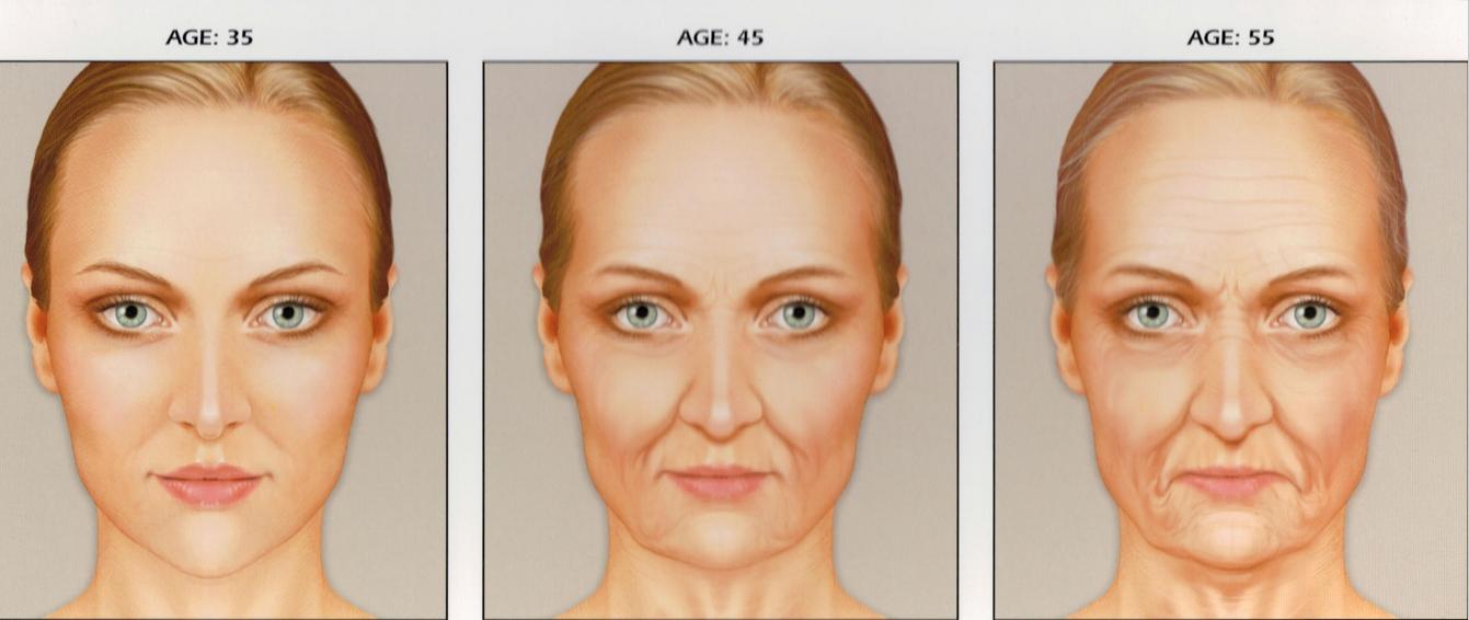 Clinica wulkan escala de envelhecimento e quantidade de for To do before 40