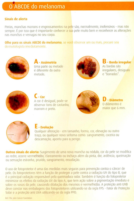 melanoma cancer de pele