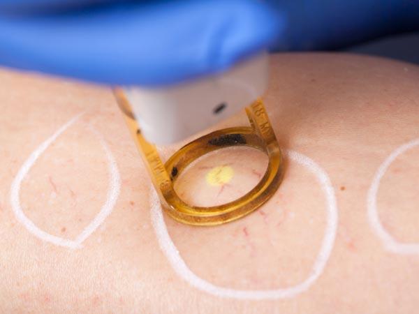 TRATAMENTO-DE-VARIZES-E-VASOS-PERNAS-SAO-PAULO-OSASCO-JARDINS - TRATAMENTO-DE-VARIZES-E-VASOS-PERNAS-SAO-PAULO-OSASCO-JARDINS - .   Preparamos dentro da clínica, um centro de excelência em cirurgia vascular e tratamento de vasos e varizes nas pernas. Contamos com um conhecido cirurgião vascular. Um cirurgião vascular com formação médica exemplar, excelente.  Um cirurgião vascular formado pela Universidade de são paulo e também professor de cirurgia vascular em são paulo, brasil e no exterior. Dr Rodrigo é ocirurgião vascular que atende na unidade de Osasco e, ao longo dos últimos anos, trouxe uma revolução para nossa estrutura de cirurgia vascular na clínica.  Na próxima página você poderá entender em detalhes como é feito o tratamento de varizes e vasos nas pernas aqui na clínica, exclusivamente na grande unidade de osasco