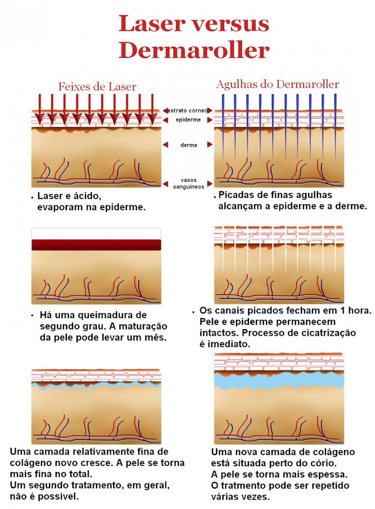 microagulhameto e dermaroller-como-funciona com dermatologista