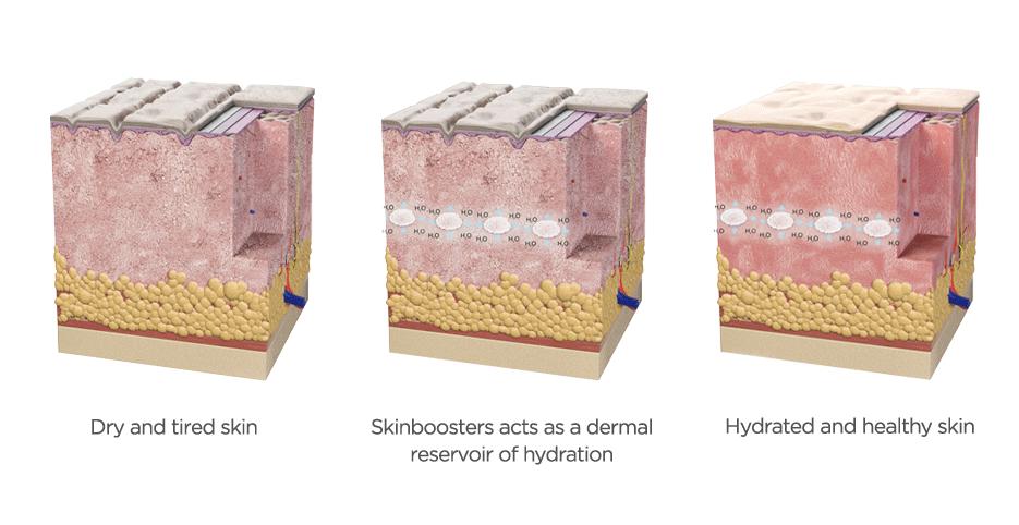 Skinbooster acido hialuronico restylane vital e restylane vital light