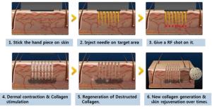 radiofrequencia e microagulhamento para cicatriz de acne _ Sao paulo dermatologista