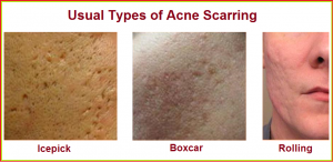Tipos e tratamento de cicatriz de acne  com dermatologista em Sao Paulo e Osasco