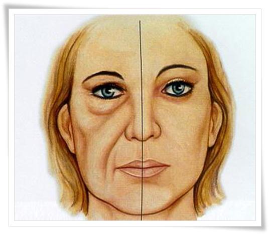 bigode chines preenchimento acido restylane volume juvederm sao paulo