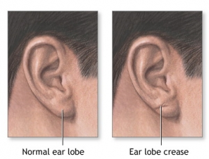 preenchimento de lobulo orelha com restylane e juvederm sao paulo