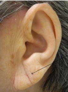 preenchimento de lobulo orelha com restylane e juvederm sao paulo osasco alphaville