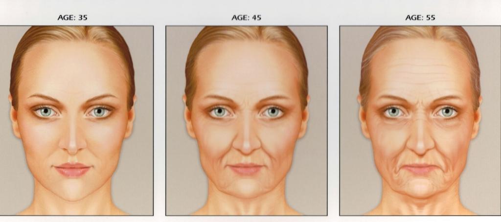 Preenchimento maça do rosto o bochechas -Terço médio