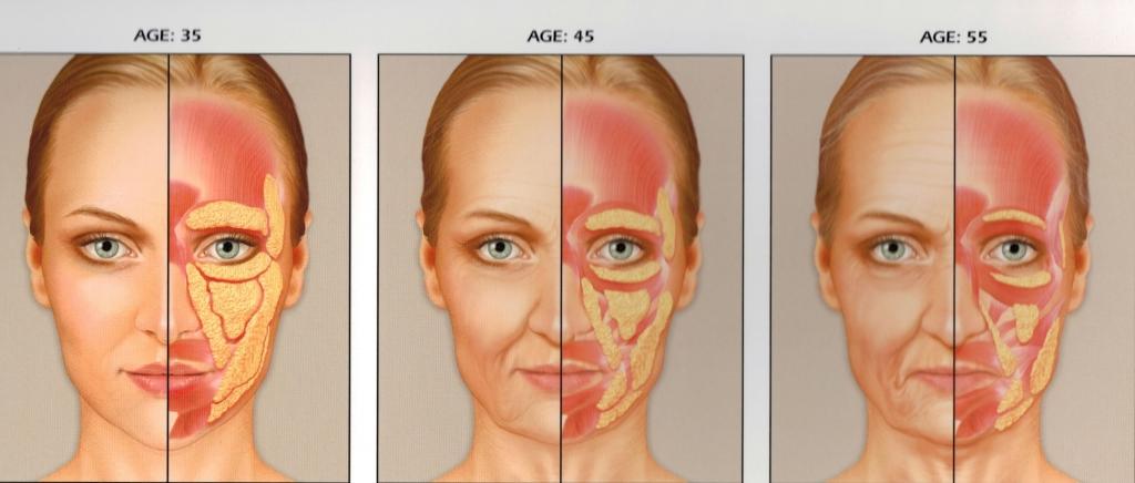 preenchimento restylane e perlane  radiesse e voluma  sculptra face facial