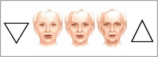 triangulo da juventude - preenchimento restylane e perlane  radiesse e voluma facial
