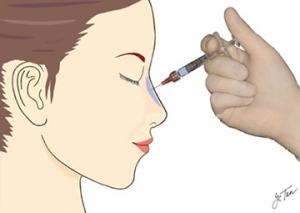 preenchimento de nariz acido hialuronico saopaulo