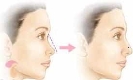 preenchimento de nariz acido hialuronico