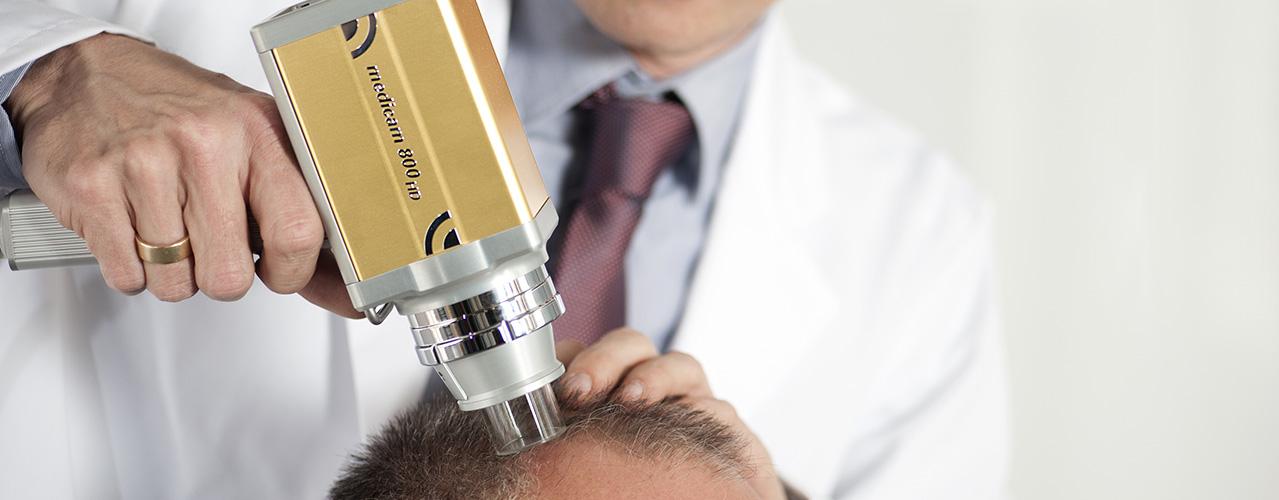 Tratamento calvicie queda de cabelo e alopecia em sao paulo homem mulher tricoscopia dermatoscopia cabelos