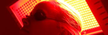 Tratamento da queda de cabelo calvicie e alopecia em sao paulo homem mulher com laser e led