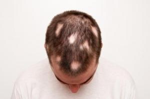 clinica especializado em queda de cabelo e calvicie em sao paulo