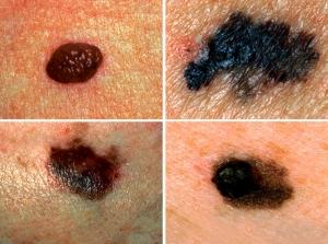 tratamento cancer de pele em sao paulo , cirurgia cancer de pele, melanoma tratamento