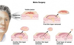 tratamento cancer de pele cirurgia de mohs