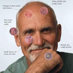 Tratamento câncer de pele com cirurgia em Sao Paulo e Osasco, com cremes, crioterapia ou cirurgia