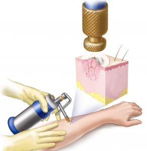 tratamento cancer de pele com cirurgia em Sao Paulo e Osasco com crioterapia