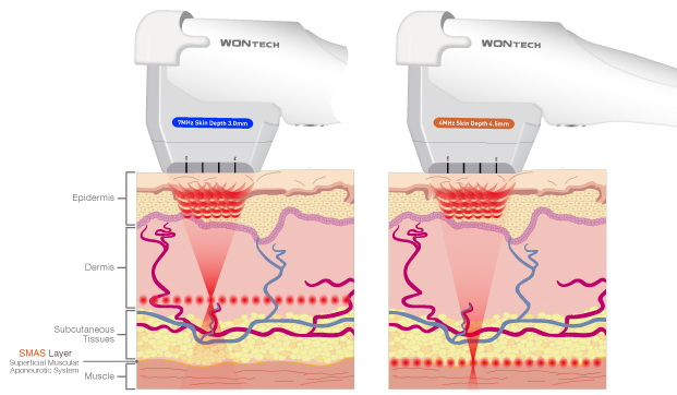 HIFU-tratamento com ulthera em sao paulo