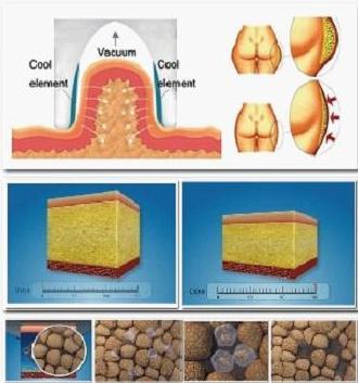 criolipolise tratamento em sao paulo