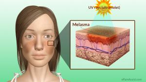 Melasma tratamento Laser roller sao paulo osasco alphaville