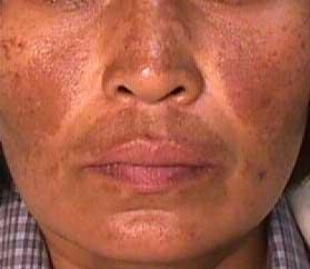 manchas e Melasma tratamento Laser roller sao paulo osasco alphaville