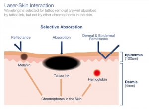 remocao de tatuagem a laser sao paulo osasco alphaville