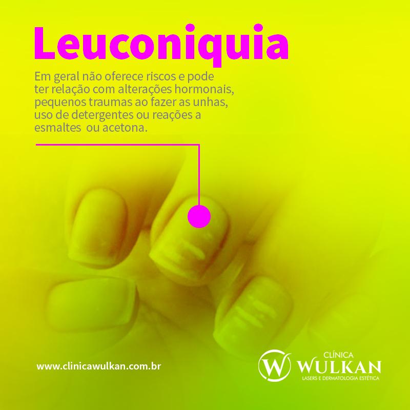 Leuconiquia