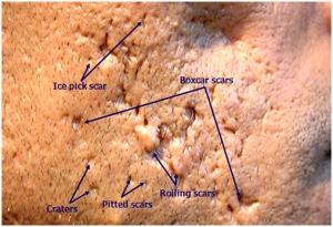 Tipos e tratamento de cicatriz de acne  com dermatologista em Sao Paulo e Osasco Alphaville