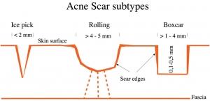 tipos e tratamento de cicatriz de acne SAO PAULO