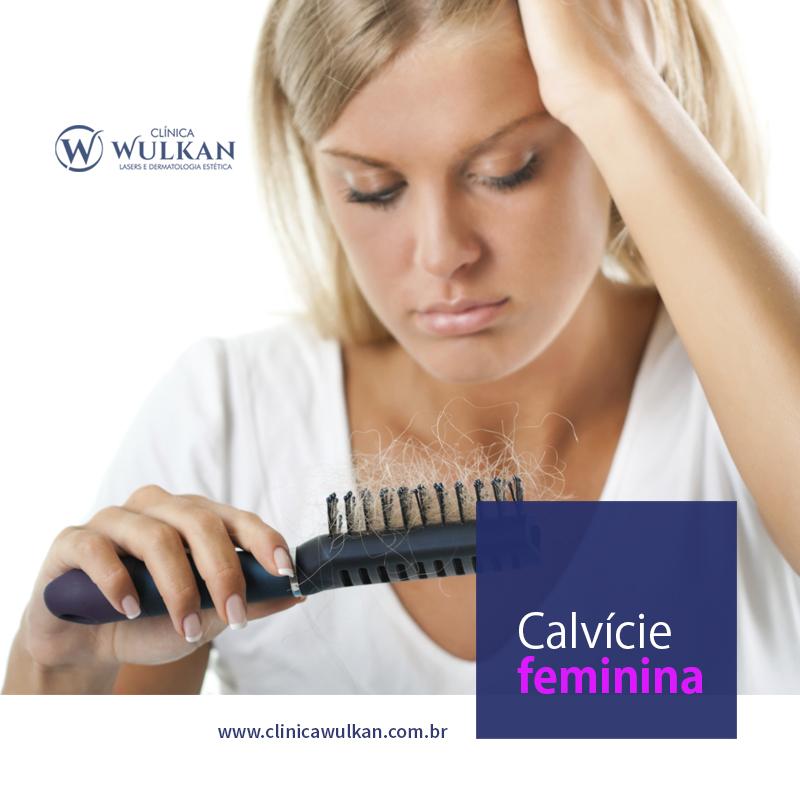 Calvície feminina: a mulher pode ficar careca?