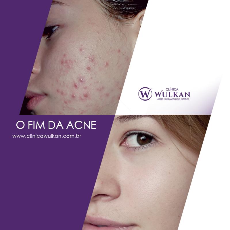 o fim da acne
