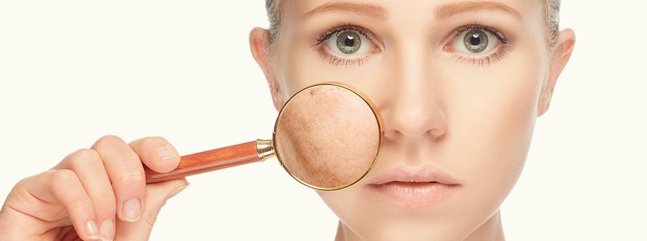 Melasma tratamento Laser derma roller sao paulo osasco alphaville