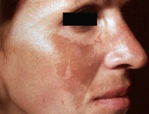 Melasma tratamento com peeling Laser roller sao paulo osasco alphaville