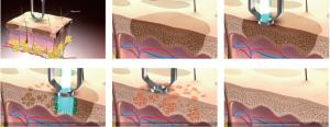 Melasma tratamento com peeling Laser roller sao paulo osasco alphaville LASER