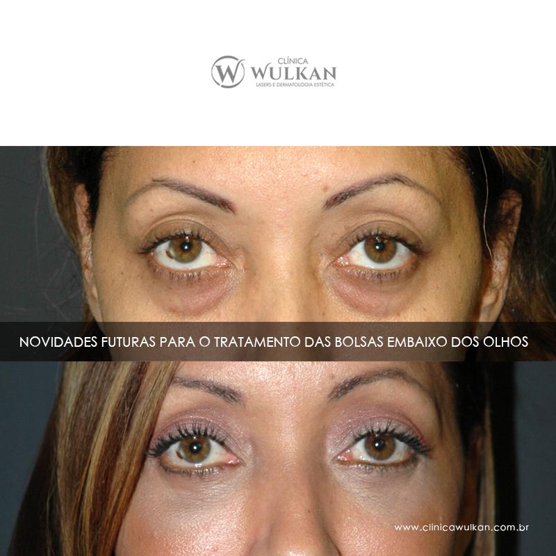 Tratamento das bolsas embaixo dos olhos