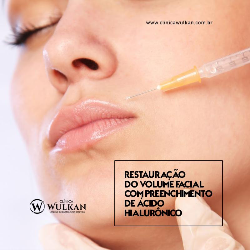 Restauração do volume facial com preenchimento de ácido hialurônico