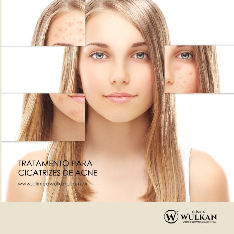 Tratamento para cicatrizes de acne