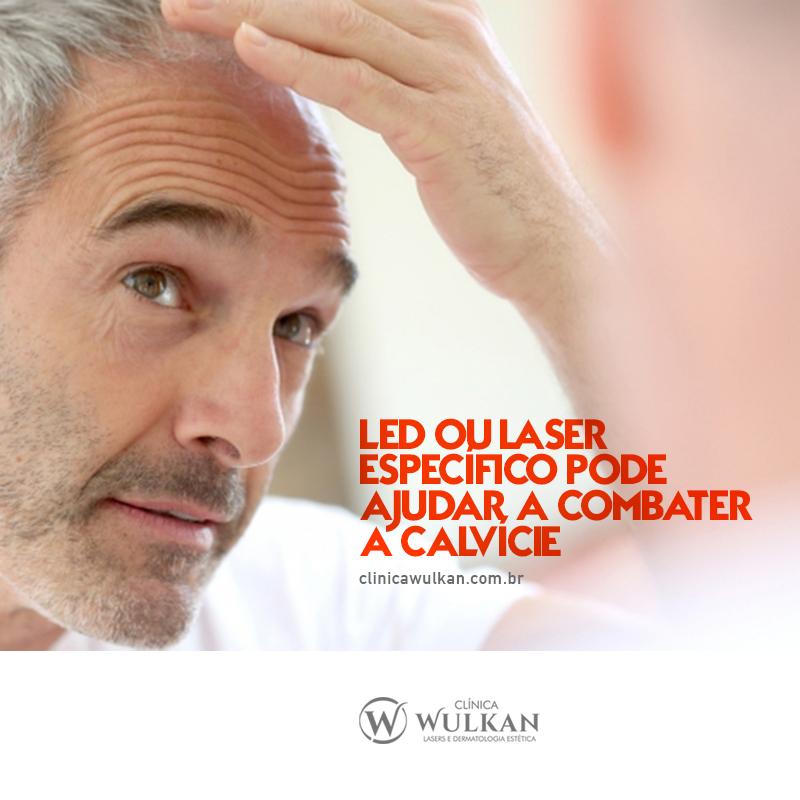 LED ou LASER específico pode ajudar a combater a calvície